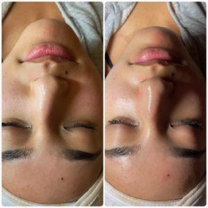 Facial Treatment Sample 1